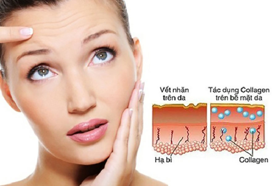Bổ sung collagen type 1!
